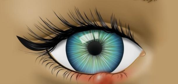 Gözlerinizdeki sorunlar, ciddi sağlık problemlerinin habercisi olabilir
